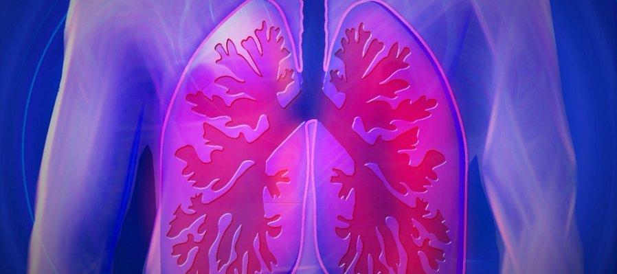 Pulmones artificiales